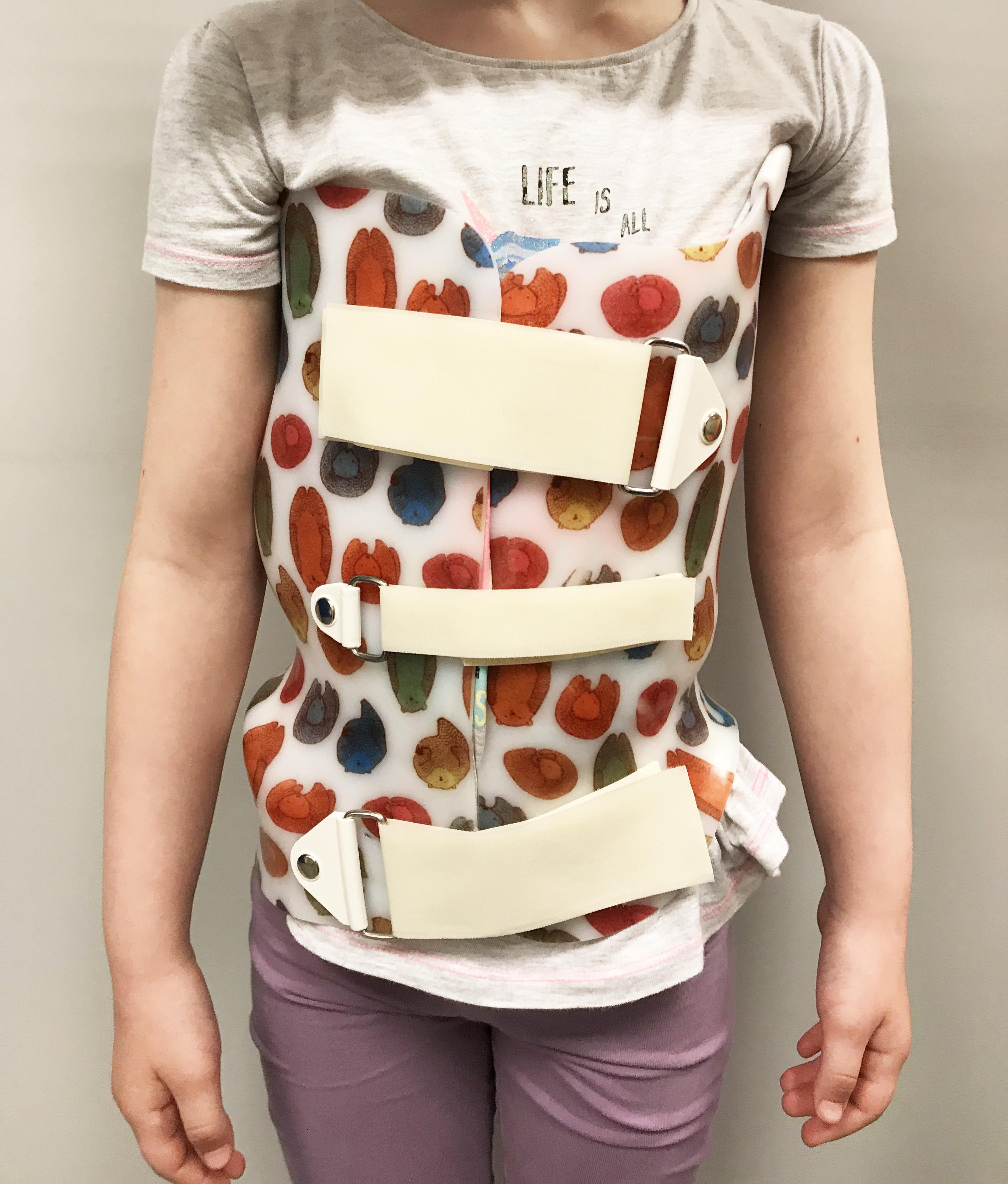 Korseto dėvėjimas padeda gydyti skoliozę.