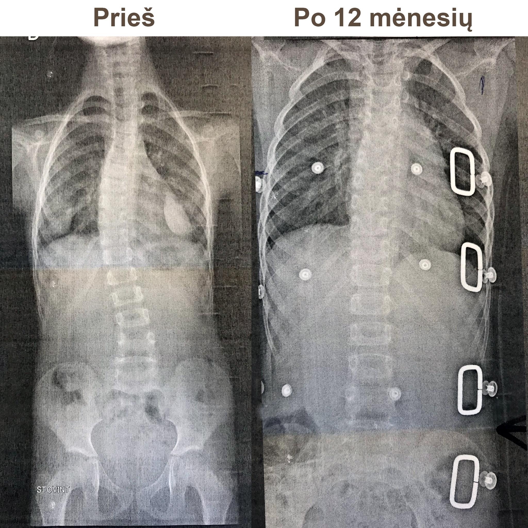 Korseto dėvėjimas - prieš ir po 12 mėn.