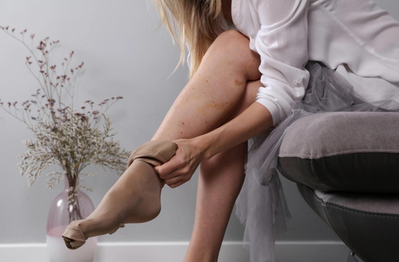 Kompresinės terapijos priemonės