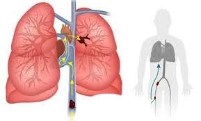 Plaučių embolija